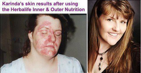 Herbalife Nutrition - Independent Distributor - Charlie Farrell image 17