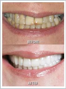 Softouch Dental Care: Dr. Michael K. Chung, DDS image 3