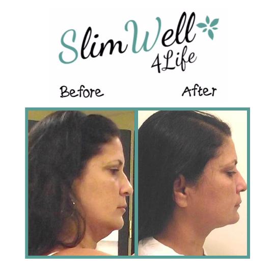 SlimWell  4 Life image 4