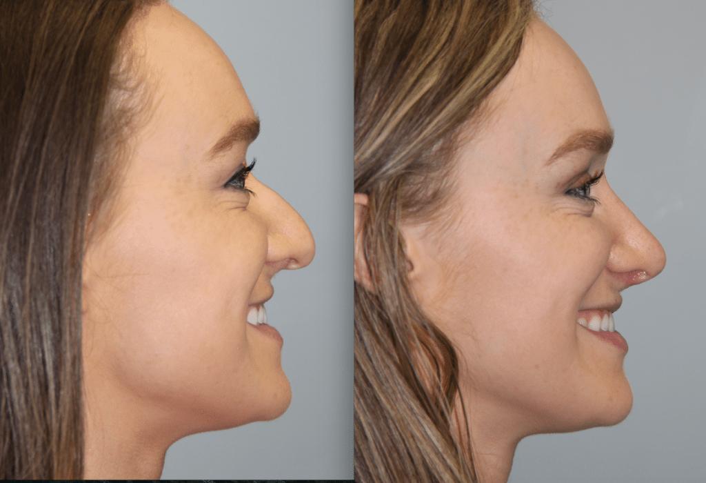 Daines Plastic Surgery image 7