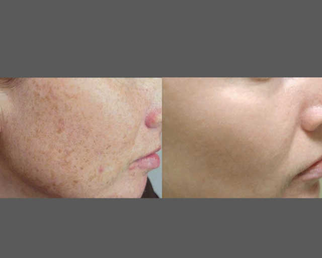 Skin Care and Laser Physicians of Beverly Hills image 11