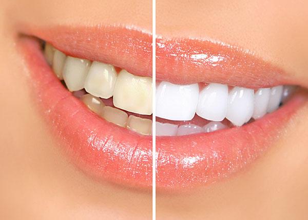 All Bright Dental image 9
