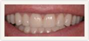 Darshan P. Patel, DDS, DPh, PLLC Esthetique Dental image 3