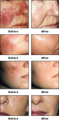 Facial Telangiectasia/Rosacea treatment with PDL Vbeam Laser, , Cosmetic Dermatologist
