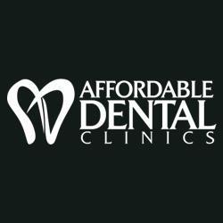 Affordable Dental Clinics: Restoration & Implants
