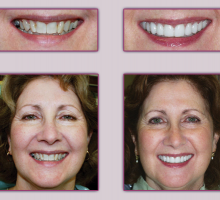 Lehigh Valley Smile Designs - Michael A. Petrillo DMD, PC image 5