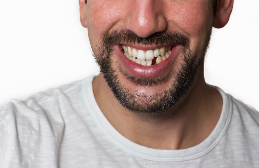 Eastside Dental Associates image 18