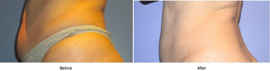 Lasair Aesthetic Health