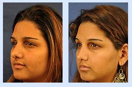 Florida Ear Nose Throat & Facial Plastic Surgery Center image 1