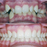 Fulks Orthodontics image 4