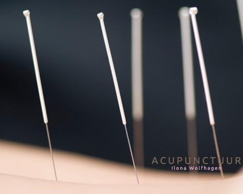 Wolfhagen Acupunctuur