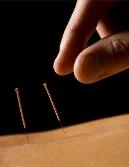 Paul van Delft Acupunctuur Bergen op Zoom Lid NVA