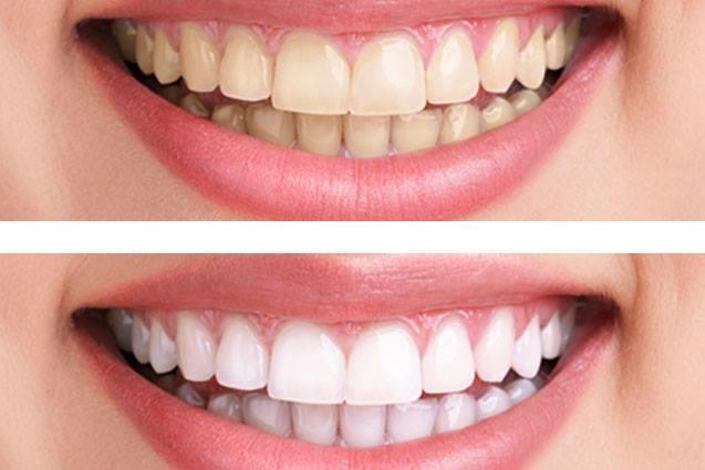 Clínica Dental Carrera