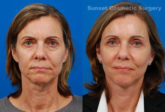 Sunset Cosmetic Surgery image 0