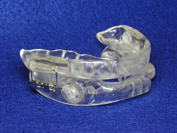 Snoring & Sleep Apnea Dental Treatment Center image 2