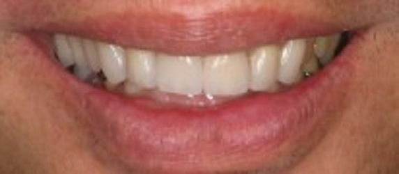Glenlake Dental Care image 7