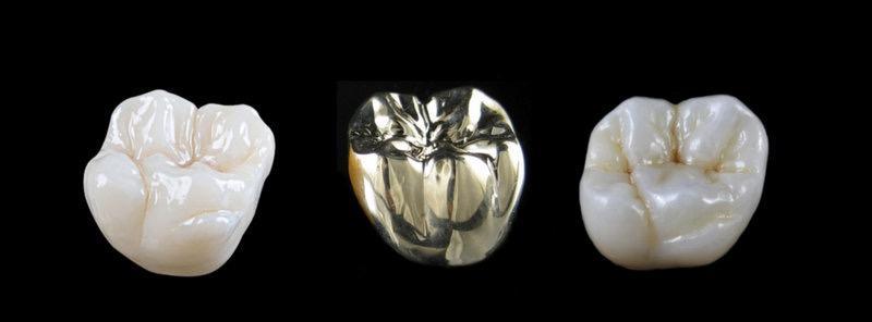 Elite Dental Design image 2