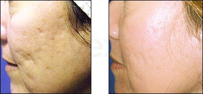 Acne Scarring: Before & After Results with Fraxel Laser, , Cosmetic Dermatologist