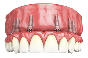 Denville Implant and Cosmetic Dentistry Center image 1