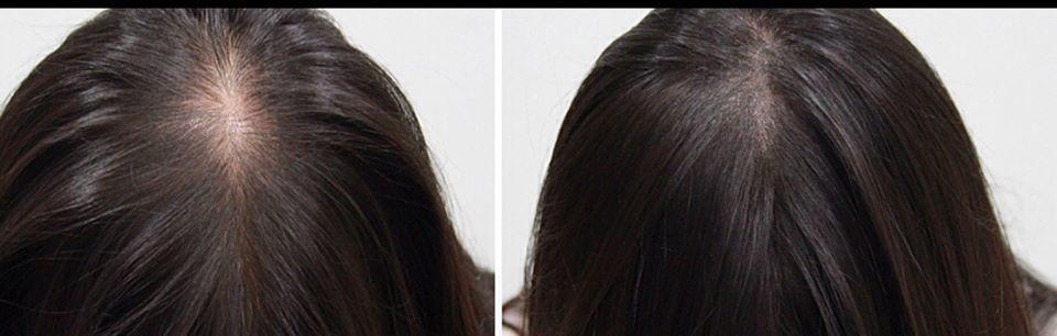 Micro Scalp Clinic - ad image