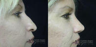 Cosmetic Surgery and Laser Center of El Paso image 8