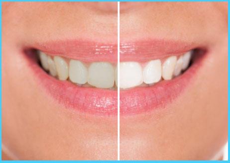 Premier Dental Care image 0