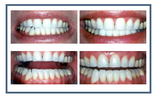 Forestream Dental, LLC image 3