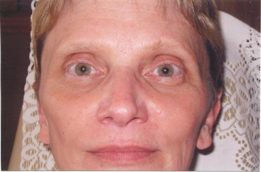 FACES by Marcia Renner BS, LPN, FAAM, CPCP Permanent Cosmetic Makeup image 2