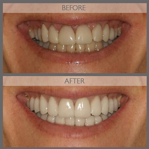 Classi Cosmetic & Implant Dentist of NYC image 5
