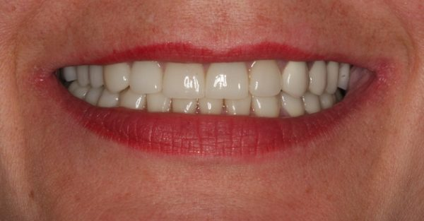DeJesus Dental Group image 7