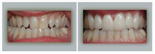 Lake Forest Dental Health Care image 4