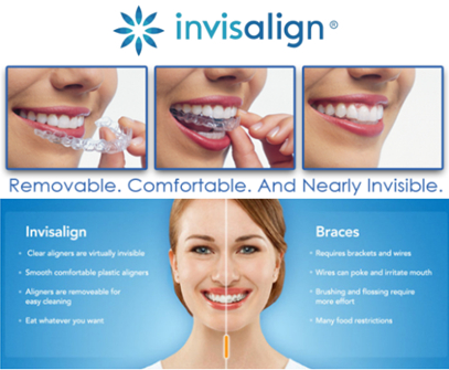 Westgate Dental Centre in Maple Ridge: Invisalign available here!