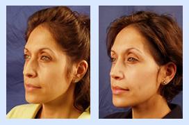 Florida Ear Nose Throat & Facial Plastic Surgery Center image 2