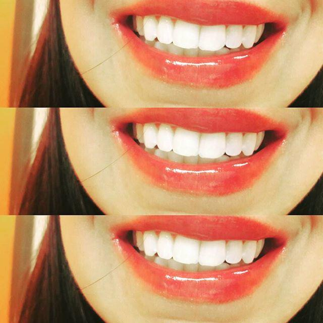 Radiant White Smiles Of Austin Cosmetic Teeth Whitening image 0