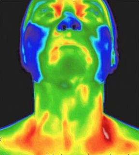 CT Thermography image 11