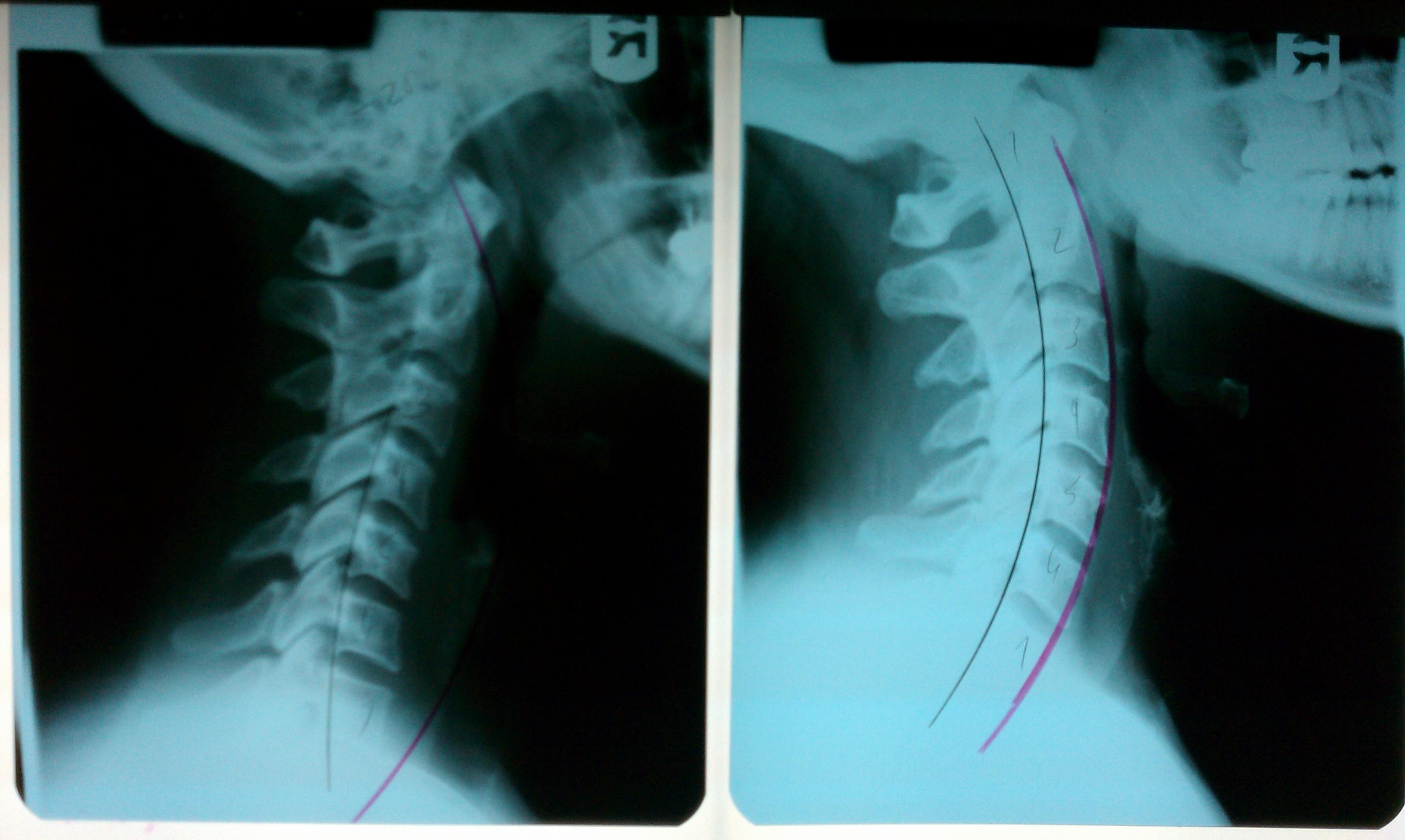 Chiropractic care and massage therapy can help improve posture and balance