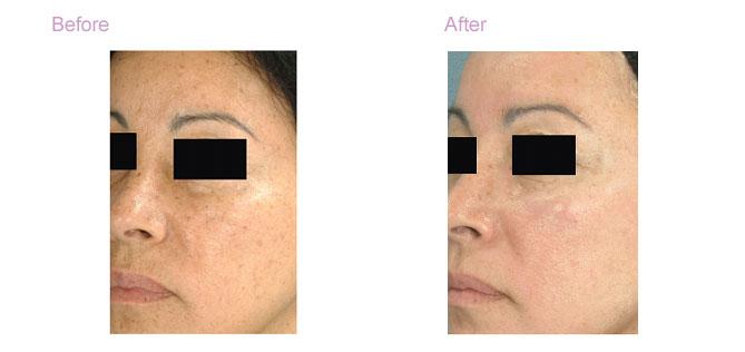 Ageless Beauty Laser