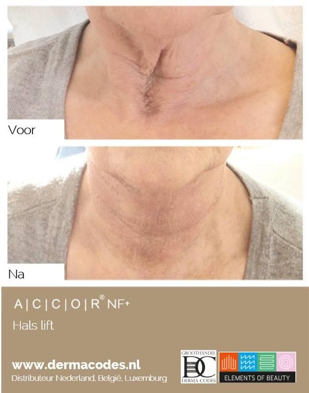 Simone de Wildt | Huid- & Oedeemtherapie Malden