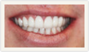 Darshan P. Patel, DDS, DPh, PLLC Esthetique Dental image 6
