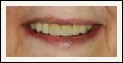 Darshan P. Patel, DDS, DPh, PLLC Esthetique Dental image 5