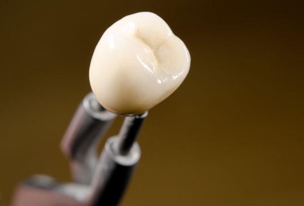 Providence Family Dentistry image 2