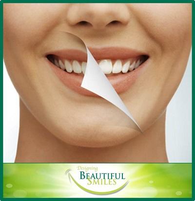 Designing Beautiful Smiles image 1