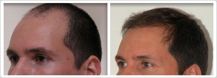 Hair Transplant Center NYC image 3