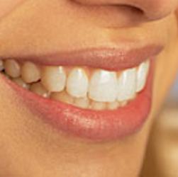 Lantern Dental image 5