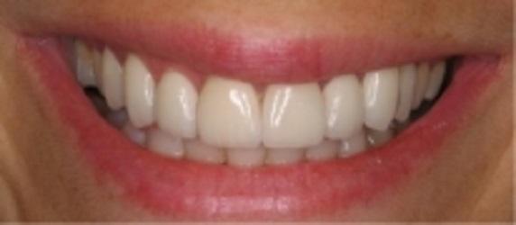 Glenlake Dental Care image 9