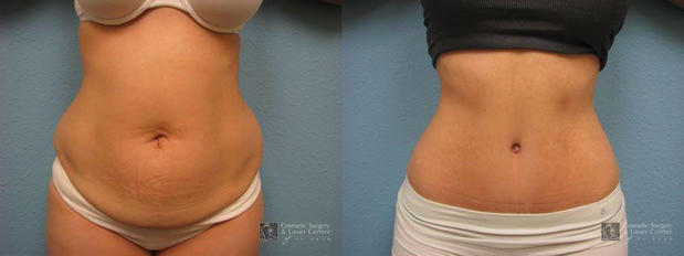 Cosmetic Surgery and Laser Center of El Paso image 11