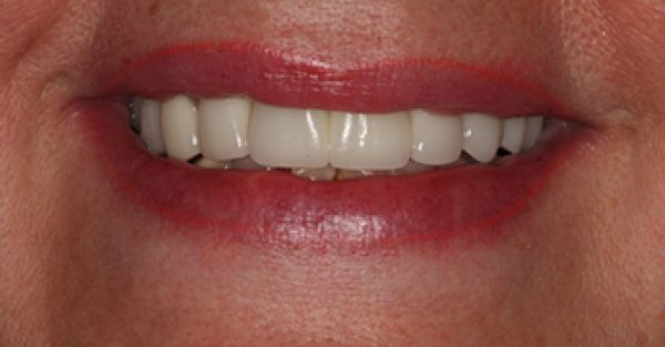 DeJesus Dental Group image 11