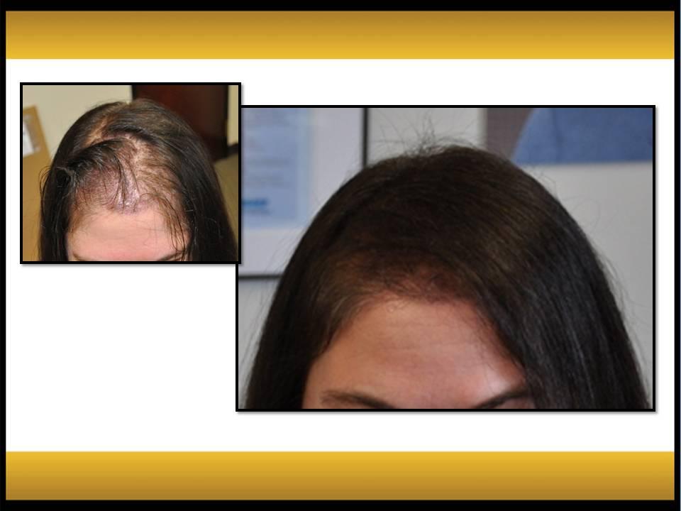 Fallon Hair Restoration - ad image