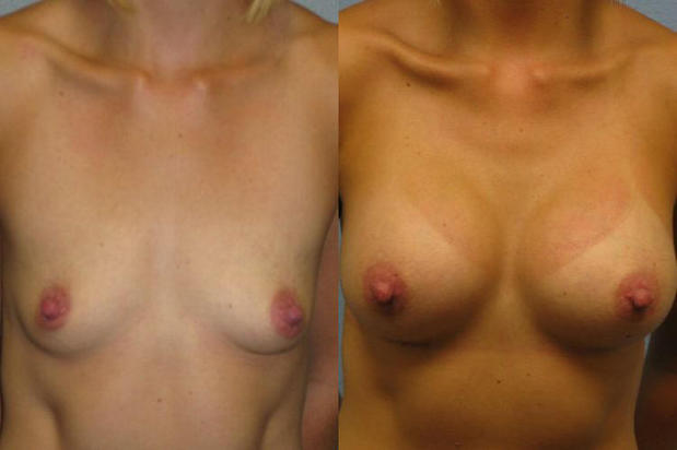 Cosmetic Surgery and Laser Center of El Paso image 3