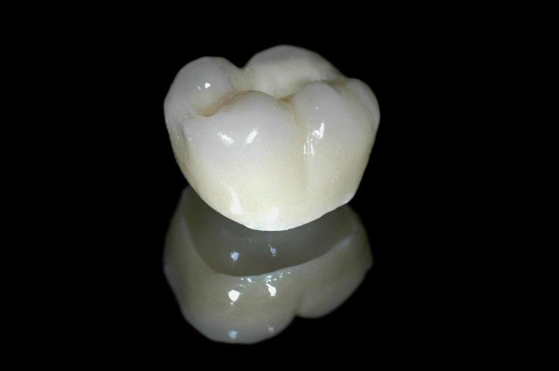Elite Dental Design image 1
